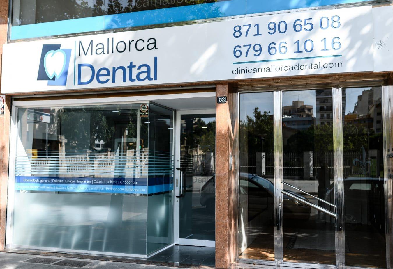 Contacto - Clínica Mallorca Dental