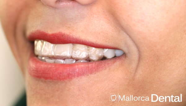 """Ortodoncia invisible """"Invisalign"""". ¿Qué es? ¿Qué ventajas tiene?"""