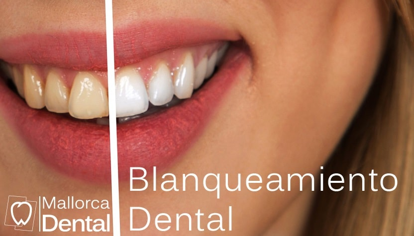 ¿Qué es el blanqueamiento dental?