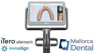 iTero - Escaner intraoral 3D en Palma de Mallorca