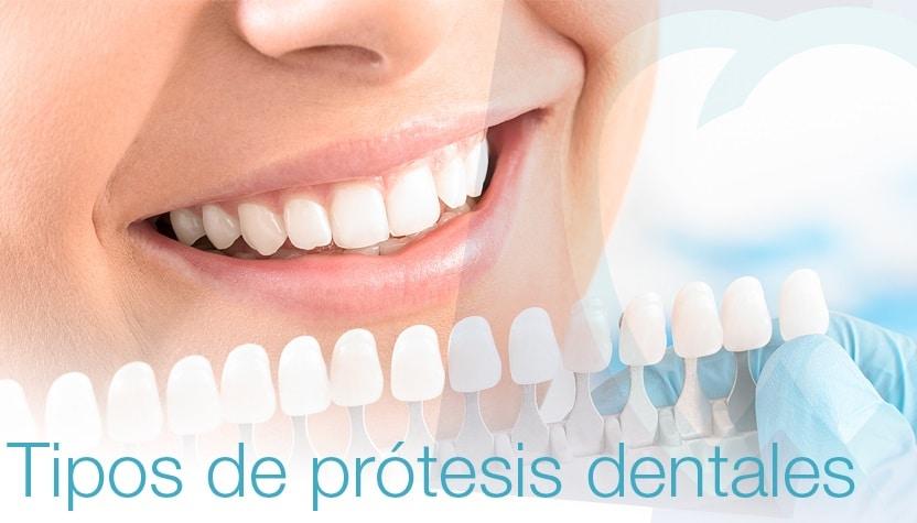 Tipos de prótesis dentales | Mallorca Dental, especialistas en prótesis dentales